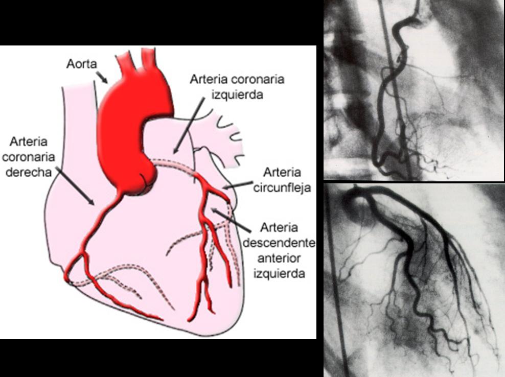 Información general sobre el corazón - Cardio Quirón
